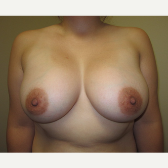 35-44 year old woman treated with Breast Implants after 3129258