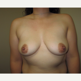 35-44 year old woman treated with Breast Implants before 3129258