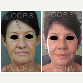 Complete facial rejuvenation of 61 year old woman before 3031222