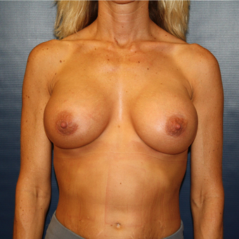 35-44 year old woman treated with Breast Augmentation after 3033301