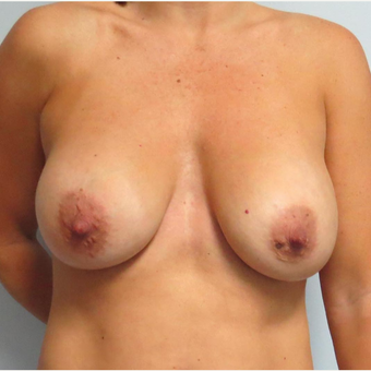 Breast Lift with Implants for this 43 Year Old Woman before 3025280