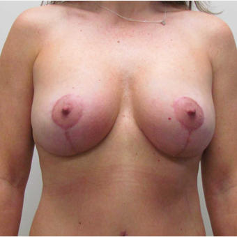 Breast Lift with Implants for this 43 Year Old Woman after 3025280