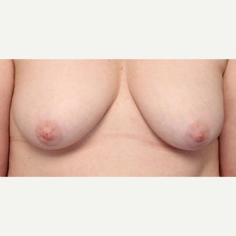 44 year old woman wanted more prominent Nipples before 1556546