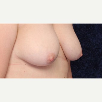 44 year old woman wanted more prominent Nipples 1556546