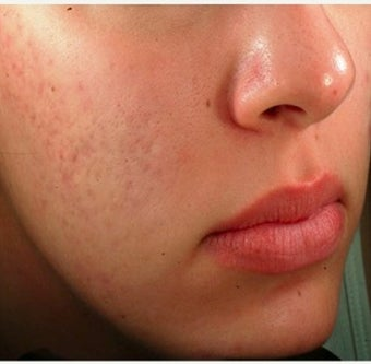 25-34 year old woman treated with Acne Scars Treatment before 1639781