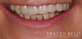 New dental plate after 3097312