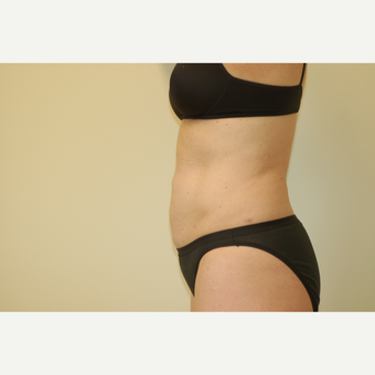 25-34 year old woman treated with Smart Lipo after 3032463