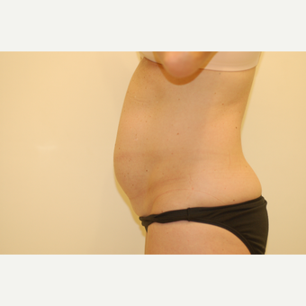 25-34 year old woman treated with Smart Lipo before 3032463