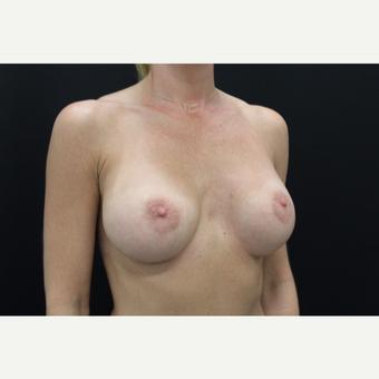 35-44 year old woman treated with Breast Augmentation after 3103014