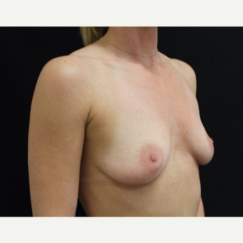 35-44 year old woman treated with Breast Augmentation before 3103014