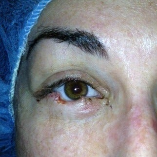 25-34 year old woman treated with Mohs Surgery before 1970332