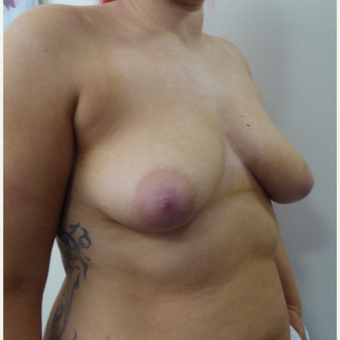 35-44 year old woman treated with Breast Lift before 3428379