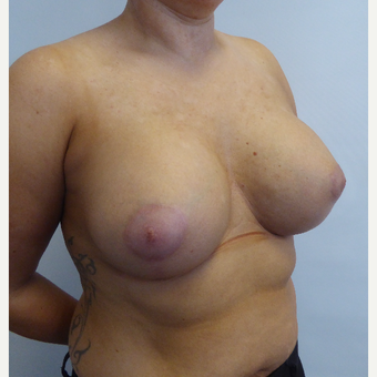35-44 year old woman treated with Breast Lift after 3428379