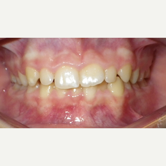 17 or under year old woman treated with Invisalign before 3669211