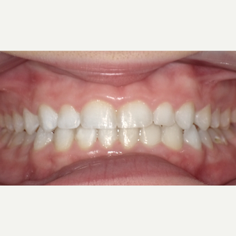 17 or under year old woman treated with Invisalign after 3669211