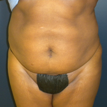 35-44 year old woman treated with Tummy Tuck before 3161896