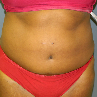35-44 year old woman treated with Tummy Tuck after 3161896