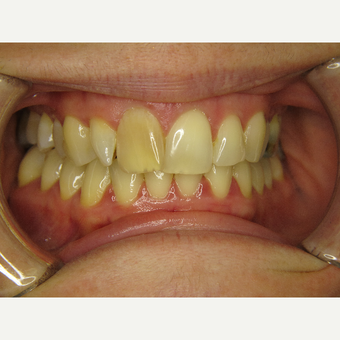 25-34 year old woman treated with Braces before 3263931