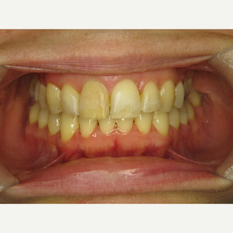25-34 year old woman treated with Braces after 3263931