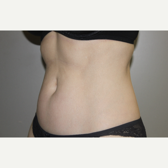 35-44 year old woman treated with SculpSure after 3706722