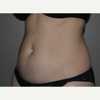 35-44 year old woman treated with SculpSure before 3706722