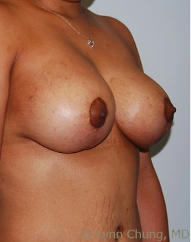 Female in her late 30's-Breast Lift with Implants after 1277641