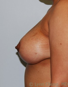 Female in her late 30's-Breast Lift with Implants 1277641