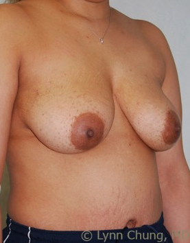 Female in her late 30's-Breast Lift with Implants before 1277641