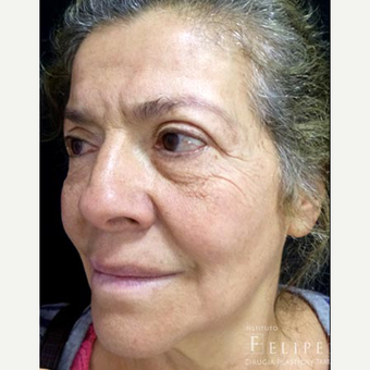 45-54 year old woman treated with Skin Rejuvenation before 3629784