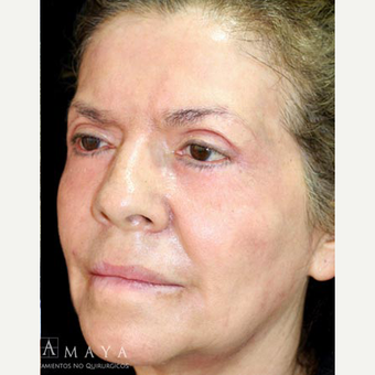 45-54 year old woman treated with Skin Rejuvenation after 3629784