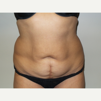 56 year old woman treated with Tummy Tuck before 2902623