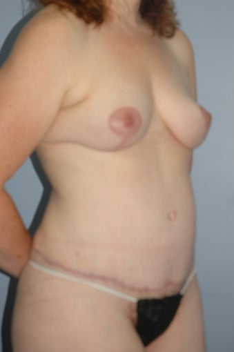 46 year old female body contouring 1124650