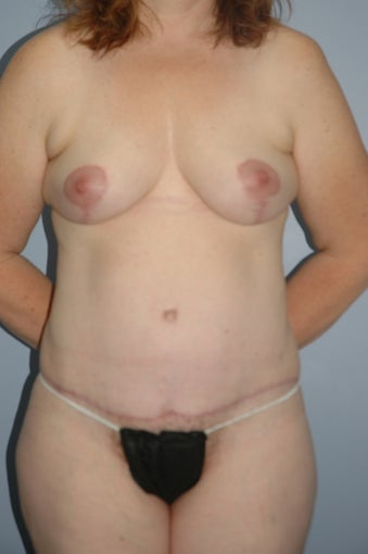 46 year old female body contouring after 1124650