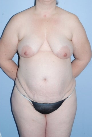46 year old female body contouring before 1124650