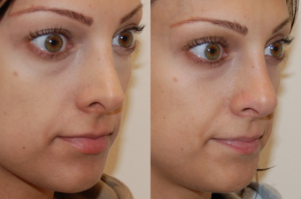 Non Surgical Nose Job before 213044