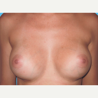 Breast Augmentation after 3732731