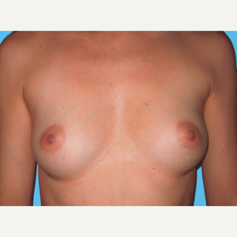 Breast Augmentation before 3732731