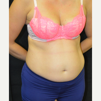 35-44 year old woman treated with Tummy Tuck before 3181893