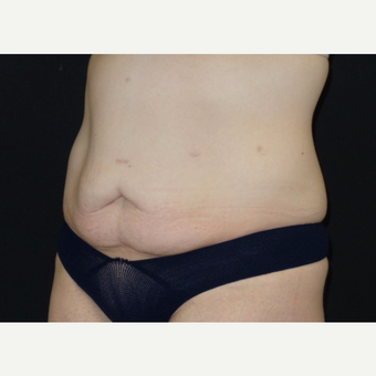 25-34 year old woman treated with Tummy Tuck before 3094371