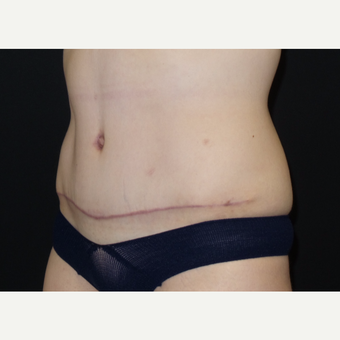 25-34 year old woman treated with Tummy Tuck after 3094371