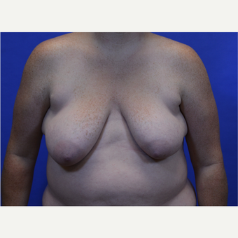 35-44 year old woman treated with Breast Lift with Implants before 3580006