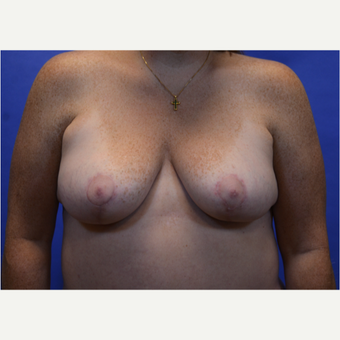 35-44 year old woman treated with Breast Lift with Implants after 3580006