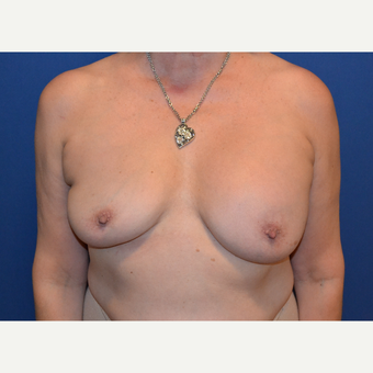 55-64 year old woman treated with Breast Implant Revision before 3663826