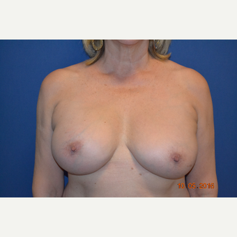 55-64 year old woman treated with Breast Implant Revision after 3663826