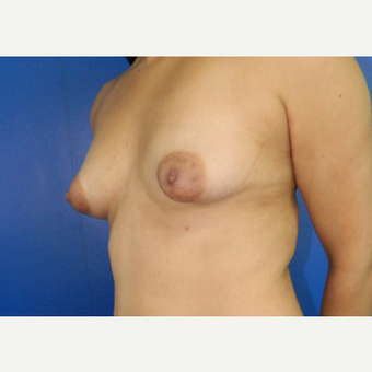 25-34 year old woman treated with Breast Augmentation before 3200813