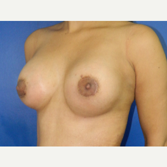 25-34 year old woman treated with Breast Augmentation after 3200813
