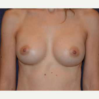 35-44 year old woman treated with Breast Implants after 3455301