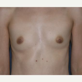 35-44 year old woman treated with Breast Implants before 3455301
