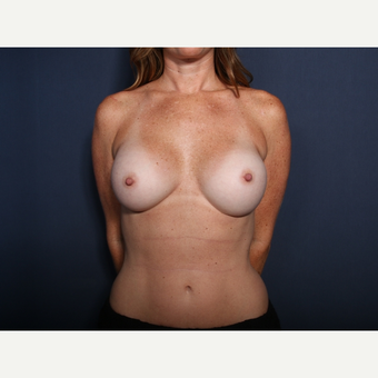 25-34 year old woman treated with Breast Augmentation (view 1 of 2) after 3142283