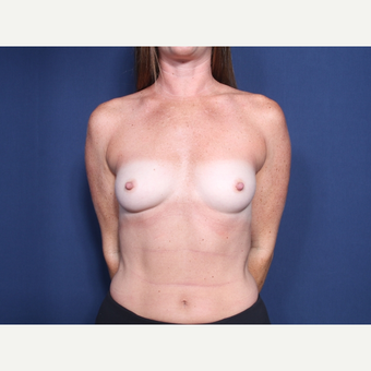 25-34 year old woman treated with Breast Augmentation (view 1 of 2) before 3142283